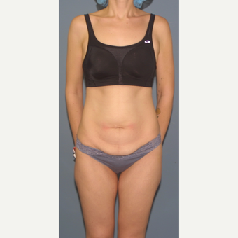 25-34 year old woman treated with Tummy Tuck before 3563688