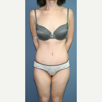 25-34 year old woman treated with Tummy Tuck after 3563688