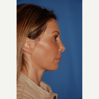 35-44 year old woman treated with Revision Rhinoplasty before 3288688