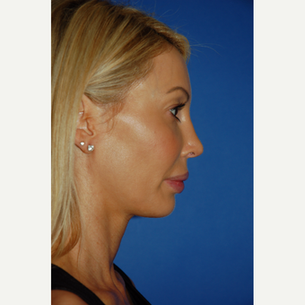 35-44 year old woman treated with Revision Rhinoplasty after 3288688