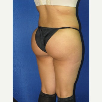 45-54 year old woman treated with Brazilian Butt Lift after 1639992