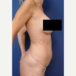 45-54 year old woman treated with Mini Tummy Tuck before 2058363