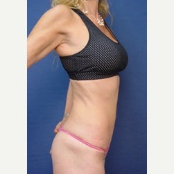 45-54 year old woman treated with Mini Tummy Tuck after 2058363