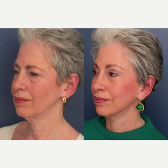 55-64 year old woman treated with Facelift after 3705789