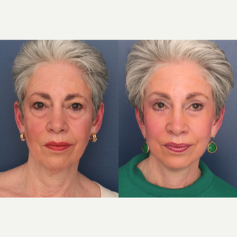 55-64 year old woman treated with Facelift before 3705789
