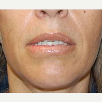 35-44 year old woman treated with Lip Augmentation after 3669778