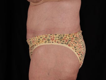 Body Lift (Beltlipectomy) 1494083