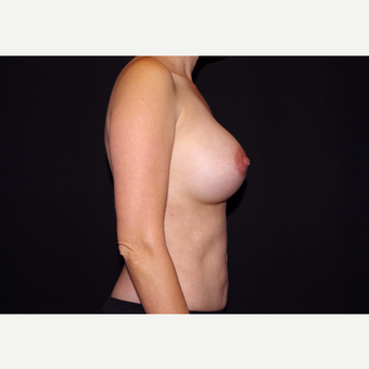 35-44 year old woman treated with Breast Implants after 3439972