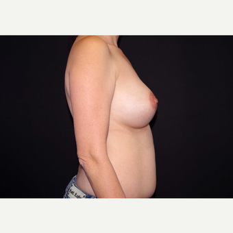 35-44 year old woman treated with Breast Implants before 3439972