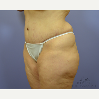 35-44 year old woman treated with Tummy Tuck after 3415620