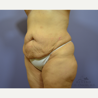35-44 year old woman treated with Tummy Tuck before 3415620