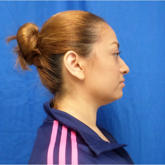 25-34 year old woman treated with Rhinoplasty before 2994504