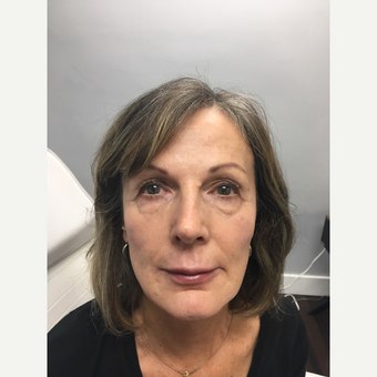45-54 year old woman treated with Non Surgical Face Lift after 3684513
