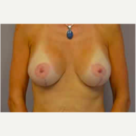 Breast Lift with Implants after 3058201