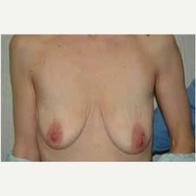 Breast Lift with Implants before 3058201