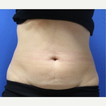 45-54 year old woman treated with SculpSure before 2421360