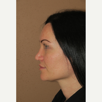 25-34 year old woman treated with Rhinoplasty after 3388897