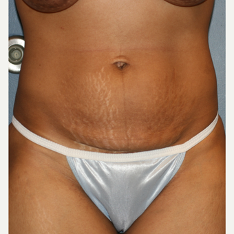 32 year old female Liposuction Tummy Tuck before 3638853
