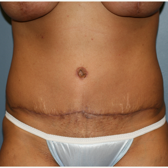 32 year old female Liposuction Tummy Tuck after 3638853