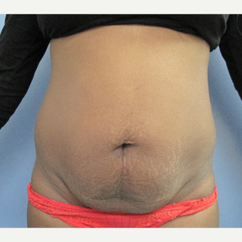 35-44 year old woman treated with Tummy Tuck before 2993384