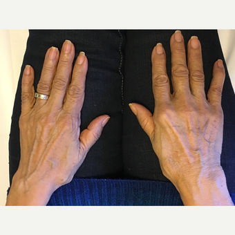 65-74 year old woman treated with Skin Rejuvenation before 3725364