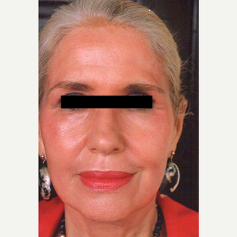 65-74 year old woman treated with Chemical Peel after 3544017