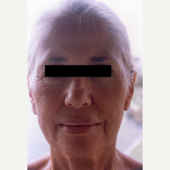 65-74 year old woman treated with Chemical Peel before 3544017