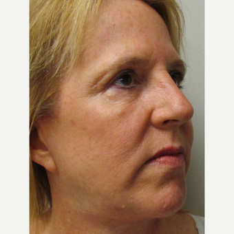 Halo Laser for this 57 Year Old Woman after 3042653
