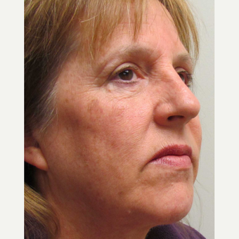 Halo Laser for this 57 Year Old Woman before 3042653