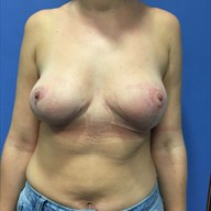 Mastopexy after 3729134