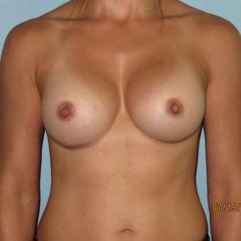 25-34 year old woman treated with Breast Augmentation after 3392302