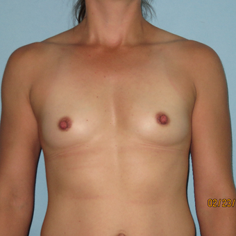 25-34 year old woman treated with Breast Augmentation before 3392302