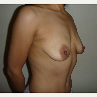 35-44 year old woman treated with Breast Augmentation before 3288104