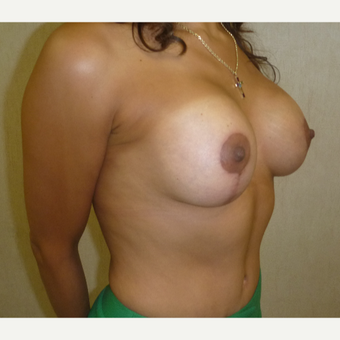 35-44 year old woman treated with Breast Augmentation after 3288104