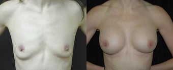 46 year old woman treated with Breast Augmentation before 2990404