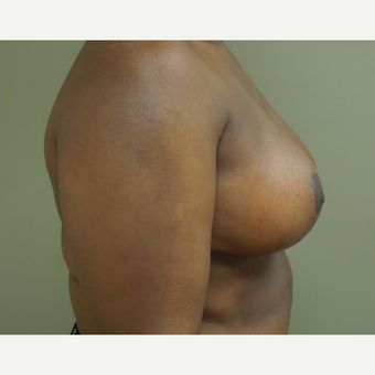35-44 year old woman treated with Breast Reduction after 3530602