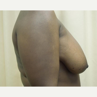 35-44 year old woman treated with Breast Reduction before 3530602
