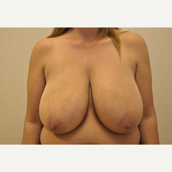 35-44 year old woman treated with Breast Reduction before 3103130