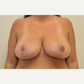35-44 year old woman treated with Breast Reduction after 3103130