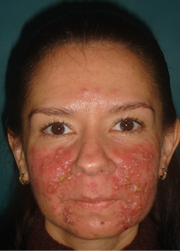 Accutane tratment before 1107462