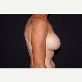 55-64 year old woman treated with Breast Implant Removal before 3741917