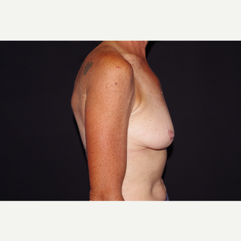 55-64 year old woman treated with Breast Implant Removal after 3741917