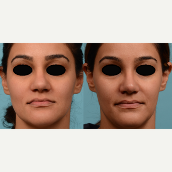 25-34 year old woman treated with Rhinoplasty before 3611370