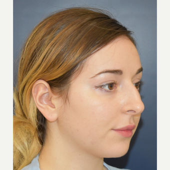 18-24 year old woman treated with Nose Surgery before 3503419