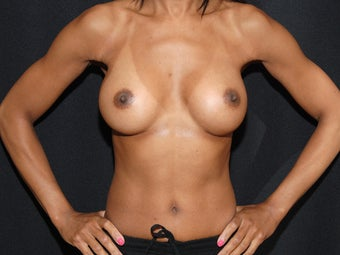 Breast Revision after 1019546
