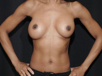 Breast Revision before 1019546