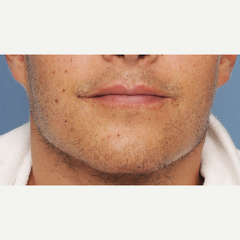 25-34 year old man treated with Chin Implant after 3316782