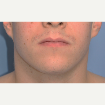 25-34 year old man treated with Chin Implant before 3316782