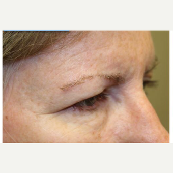 45-54 year old woman treated with Brow Lift before 3406023