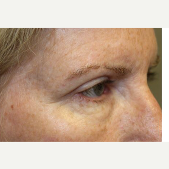 45-54 year old woman treated with Brow Lift after 3406023